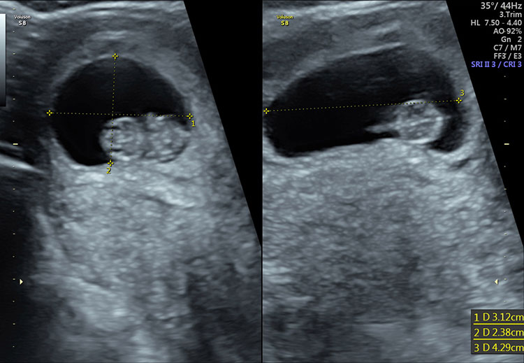 Early Pregnancy Scan/Viability Scan